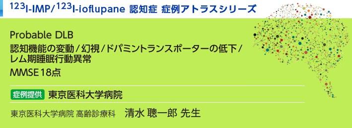 123I-IMP/123I-ioflupane認知症 症例アトラスシリーズ レビー小体型認知症  東京医科大学病院 Probable DLB 認知機能の変動/幻視/ドパミントランスポーターの低下/レム期睡眠行動異常MMSE18点 東京医科大学病院 高齢診療科 清水 聰一郎 紹介した症例は臨床症例の一部を紹介したもので、全ての症例が同様な結果を示すわけではありません。 3D-SSP/DaTViewによる画像解析は核医学画像解析ソフトウェア medi+FALCONを使用することで実施可能です。