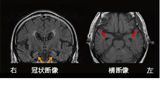 頭 症 側 認知 前頭葉 型