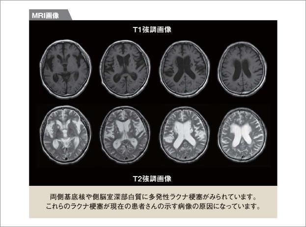 認知 性 脳 症 血管