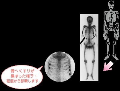 骨シンチ疾患例